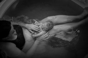 Fernanda e Miguel: um bebê com trissomia do 18 que nasceu em parto na água
